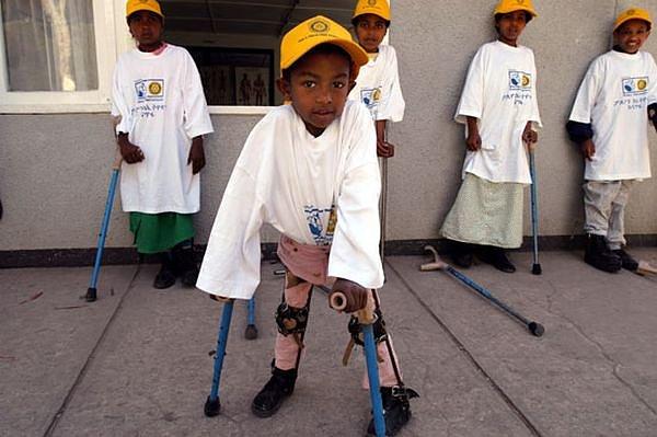 Kinderl hmung soll verschwinden uhr for Impfung gegen polio